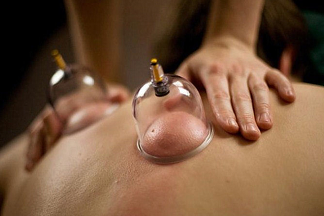 cupping1.png