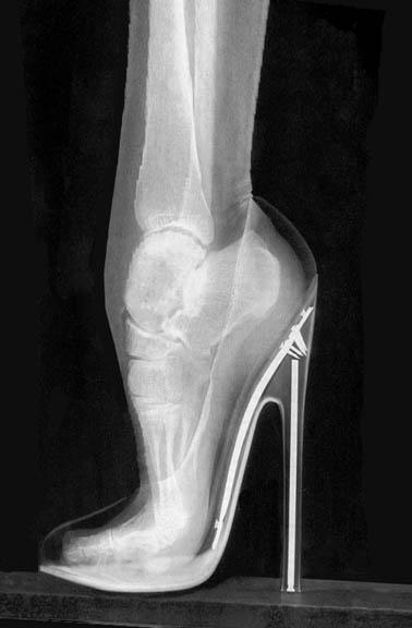 heels-x-ray